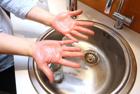 FUNKER IKKE:  Såpe og vann er ikke nok for å fjerne blåbærflekker fra hendene. Foto: OLE PETTER BAUGERØD STOKKE