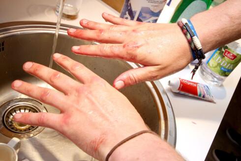 ANBEFALES IKKE:  Eddik kan brukes til mye, men ikke til å fjerne blåbærflekker fra hendene. Foto: OLE PETTER BAUGERØD STOKKE