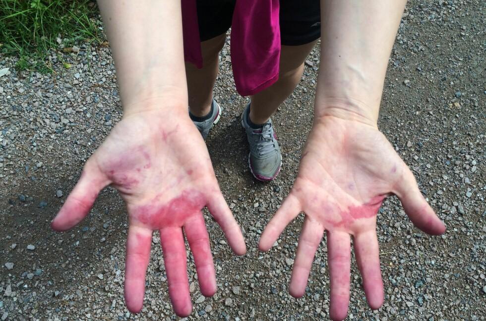 VANSKELIG:  Å fjerne blåbærflekker fra fingrene etter en tur i skogen kan være en frustrerende og vanskelig prosess. Men å unngå flekkene er en umulig oppgave uten hansker. Foto: HANNA SIKKELAND