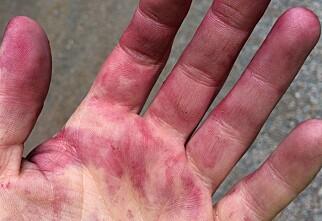 Slik fjerner du blåbærflekker fra hendene