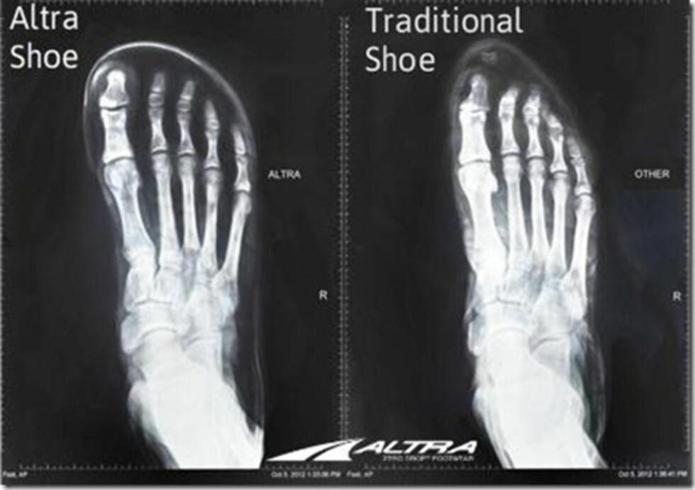 MER PLASS TIL TÆRNE: Altra-skoene har bredere tåboks som skal føre til mer stabilitet.  Foto: Altra