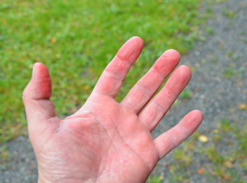 Det blir sittende litt materiale igjen i huden, det går greit bort i vanlig håndvask, det hjelper å gnikke og gni. Foto: Brynjulf Blix