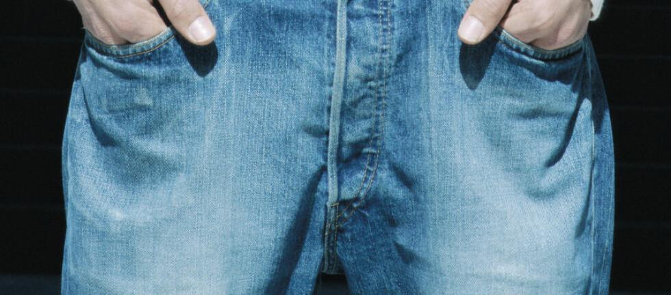 BAKTERIER: De kanadiske buksene hadde flest bakterier i dette området. Foto: Colourbox.com