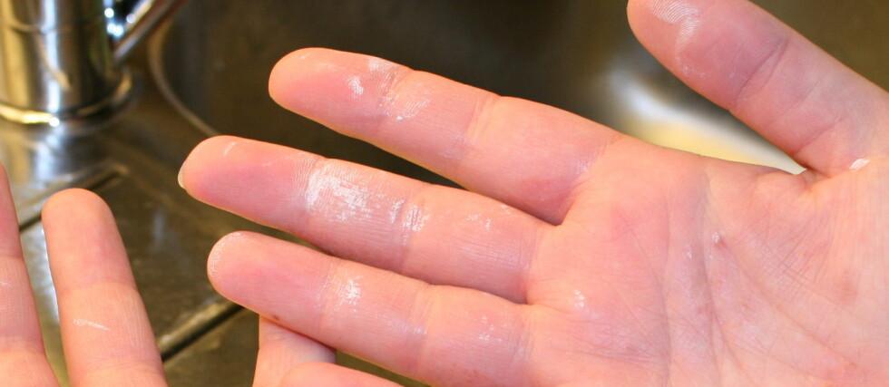 To fluer i en smekk: Matolje er langt snillere med både miljø og sart hud enn det white spirit er.