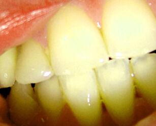 image: Derfor får du gule tenner
