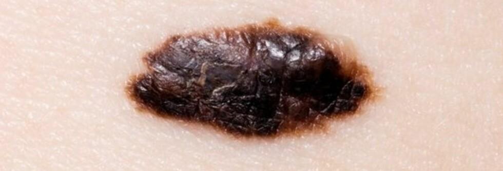 Dette er et eksempel på føflekkreft. Foto: Science Photo Library