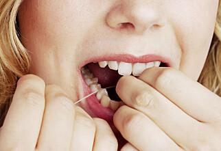 Tar du godt nok vare på munnen din?