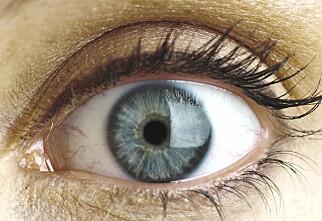 Du kan få føflekkreft i øyet