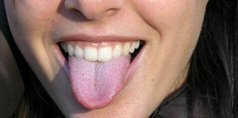 image: Lavkarbo kan gi dårlig ånde