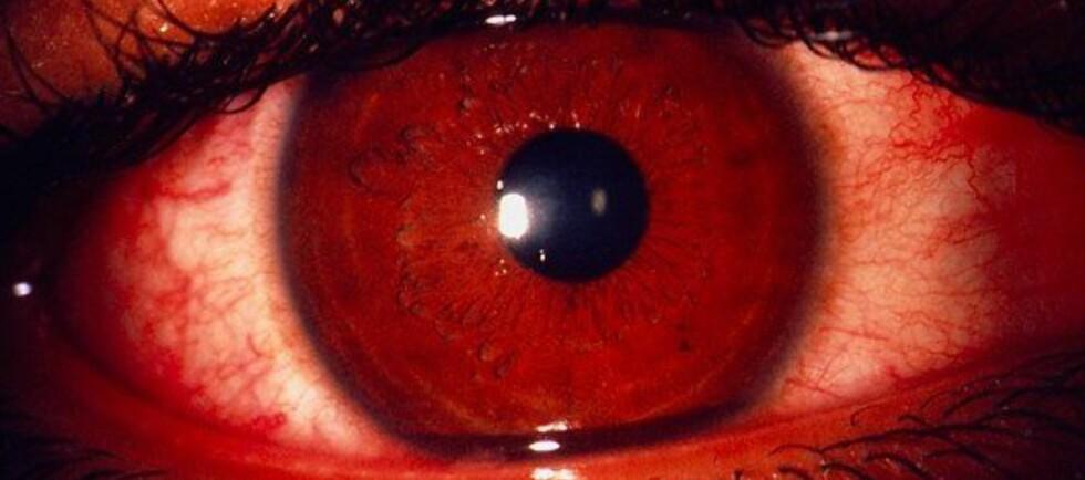 SLIK KAN DET SE UT: Dette nærbildet viser akutt klamydia på øyet. Røde, hovne og rennende øyne er vanlige symptomer.Les hvordan du får det i saken under. Foto: Science Photo Library