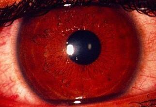 Du kan få klamydia på øyet