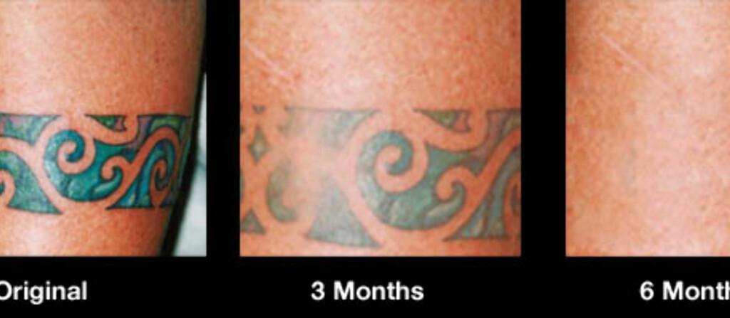 - Bruk en krem oppå den andre for å aktivere den patentsøkte formelen som trenger gjennom huden, og angriper blekk i dermos, ifølge Tattoo-bort. Foto: www.tattoobort.com