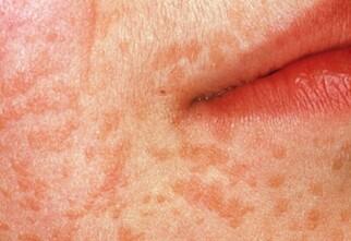 Har du «bulkete» hud?