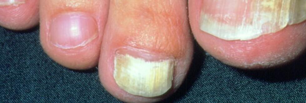 Du bør klippe tåneglene minst én gang i måneden. Foto: Science Photo Library