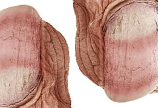 Neglene dine vokser 25 prosent raskere