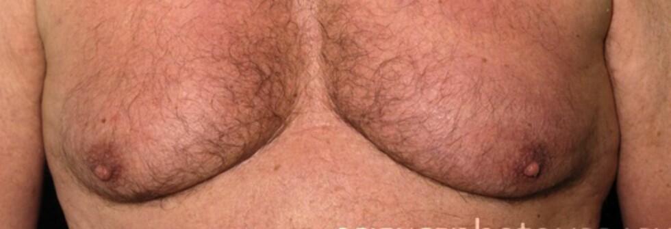 Forstørrede bryster hos menn er ikke uvanlig, men hos voksne bør man være oppmerksom på om tilstanden kan være symptom på et underliggende problem. Foto: Science Photo Library