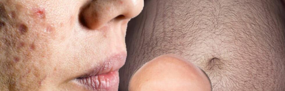 ARVELIG: Uren hud, skallethet og fedme kan skyldes gener. Foto: Montasje Science Photo Library og Colourbox