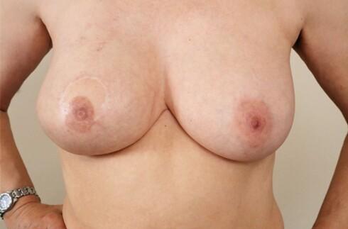 Her har man påført halvpermanent sminke på det rekonstruerte brystet (til venstre) for å få brystvorten til å se mer naturlig ut. Foto: Maria Platt-Evans/Science Photo Library