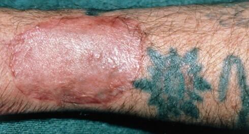 Nærbilde av armen til en mann som er halvveis i prosedyren med å fjerne en tatovering. Foto: Science Photo Library
