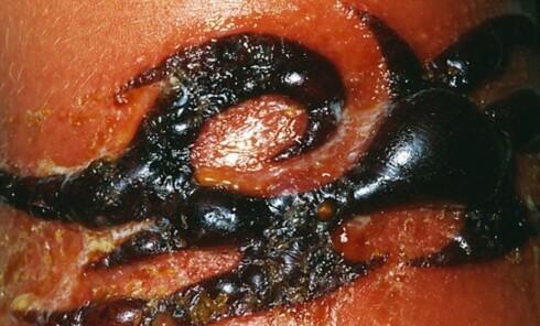 Allergisk reaksjon forårsaket av en hennatatovering. Foto: Dr. P. Marazzi/Science Photo Library