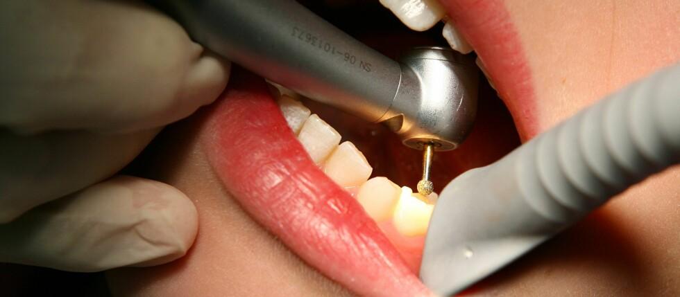 TANNLEGESKREKK? Rødhårede unngår tannlegen oftere enn andre, viser ny studie. Foto: Colourbox