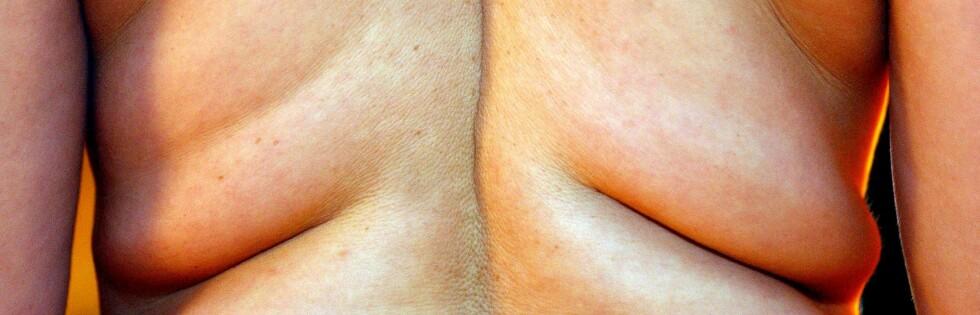 SKAL TESTES: De to allergimedikamentene skal nå testes på aper.  Foto: colourbox.com