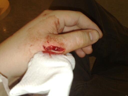 Kenneth Larsen kuttet hånden så mye at han måtte operere, etter at døren i dusjen hans granulerte.  Foto: Kenneth Larsen