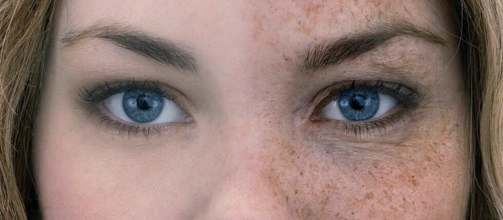Bruk av solarium gjør huden eldre. Se på forskjellen på bildet (illustrasjonsfoto)!  Foto: Cf-Wesenberg@kolonihaven.no