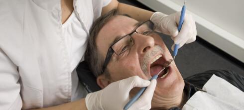Tannlegeregningen kan svi