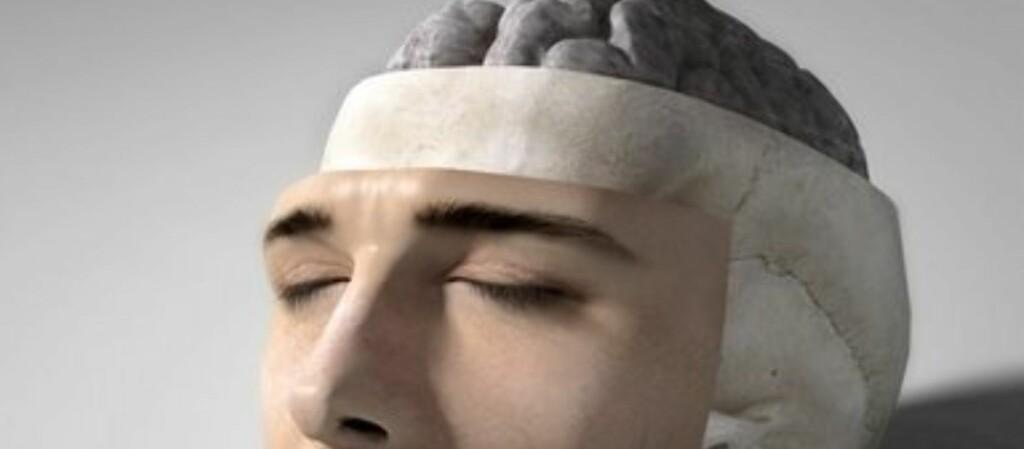 """Bilde av hjernen hentet fra <a target=""""_blank"""" href=""""http://www.sciencephoto.com/"""">Science Photo Library</a>. Foto: MEDICAL RF.COM  SCIENCE PHOTO LIRARY"""