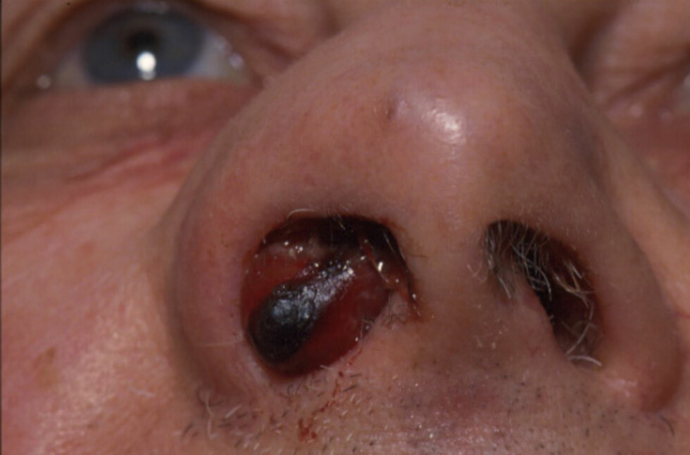 Akne- og prostatamedisin mot polypper omtales som ny behandling av nesepolypper i britiske media. Foto: University of Bristol