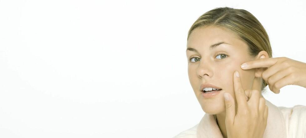 Så mange som 8 av 10 unge plages av akne (kviser).  Foto: colourbox.com