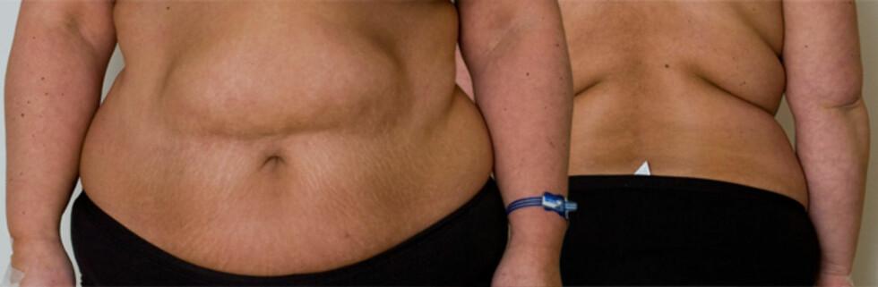 ''Anne'' veier 98 kilo og skal utføre fedmeoperasjon for å blir slankere. Foto: Per Ervland/Allerinternett