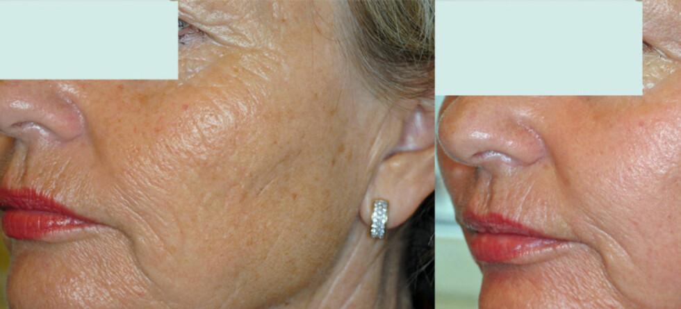 Før behandlingen (til venstre) og 14 dager etter bahandlingen (til høyre).  Foto: Foto: Hudklinikken
