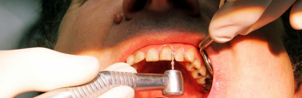 Tannbehandling til lavpris er tilgjengelig flere steder i landet, men regn med kø. Foto: Colourbox.com