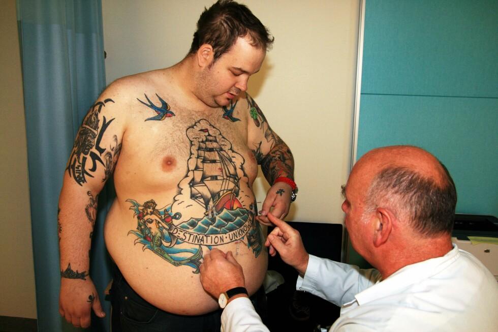 Ørjan Røstum (26) fikk fedmeoperasjon uten at tatoveringen hans ble ødelagt. Foto: Christina Yvonne Olsen