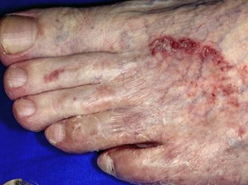 Sprekker og illeluktende lukt mellom tærne er tegn på at du har fått fotsopp. Foto: Dermnetzl.org