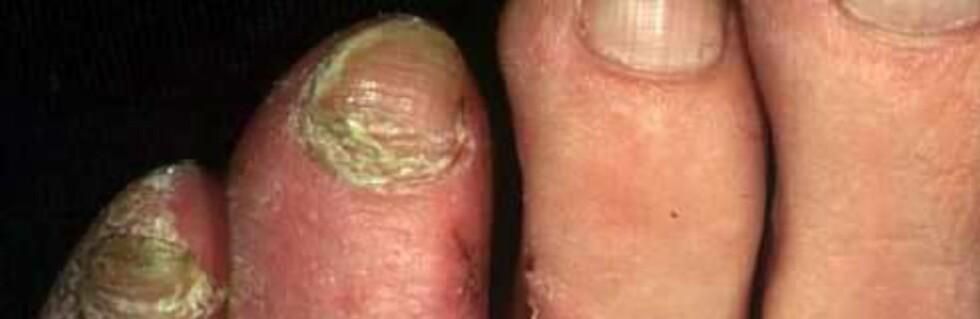 20 prosent av oss får en soppinfeksjon i løpet av livet Foto: Dermnetzl.org