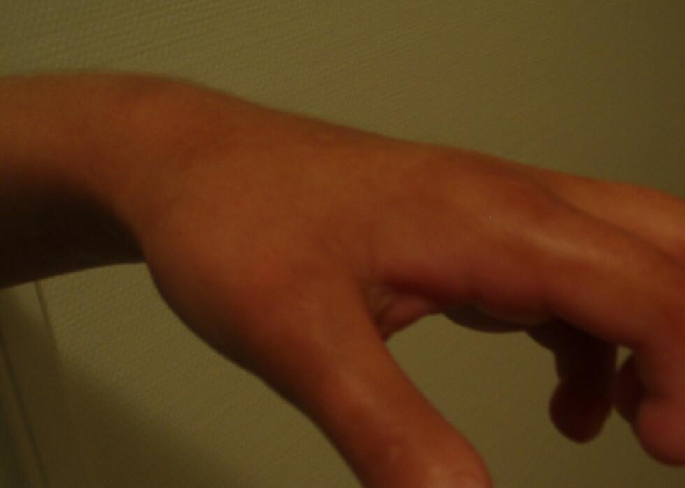 Renates hender bærer tydelig preg av sykdommen.  Foto: Privat