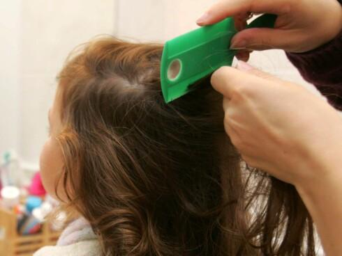 Kam håret med lusekam minst en gang i måneden, for å sjekke for eventuelle lus. Foto: Colourbox