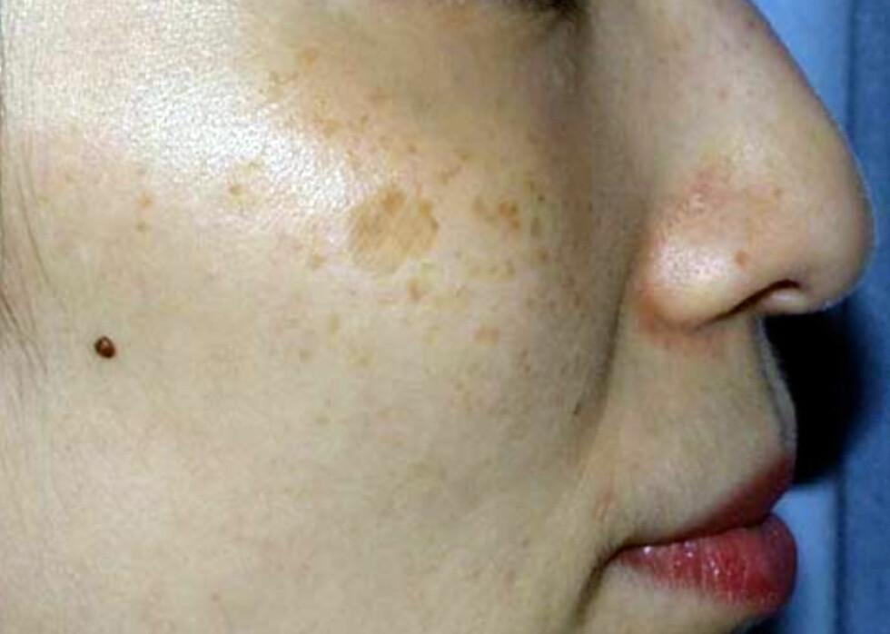 Vær kritisk dersom du skal fjerne pigmentflekker Foto: Ellipseklinikken