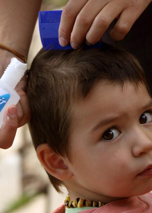 Man må kun bruke kjemiske midler når hodelus har blitt påvist. Illustrasjonsfoto: colourbox.com Foto: Illustrasjonsfoto: colourbox.c