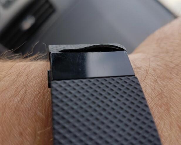 ØDELAGT FITBIT: Dette er Fitbit-armbåndet til Thomas Holth etter 1 års bruk: Plastremmen har løsnet. Han understreker at han fikk en ny etter 3 dager - og er veldig fornøyd med kundeservicen fra Fitbit. Foto: THOMAS HOLTH