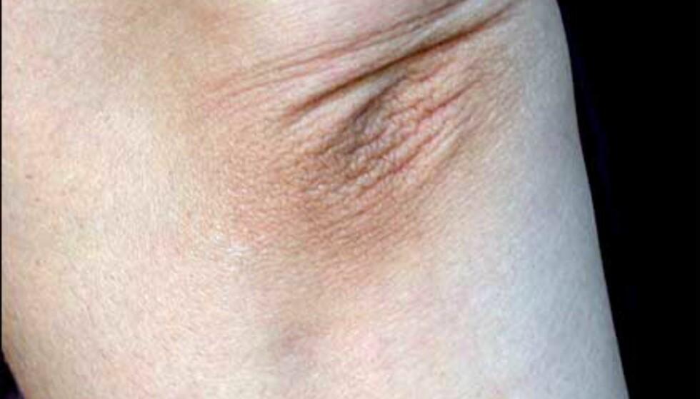 Problemområdene ved bruk av selvbruning er flere; for eksempel albuen der huden er tykkere og tørrere enn andre steder på kroppen. Det er lett å få for mye farge her, og resultatet kan bli ujevnt.
