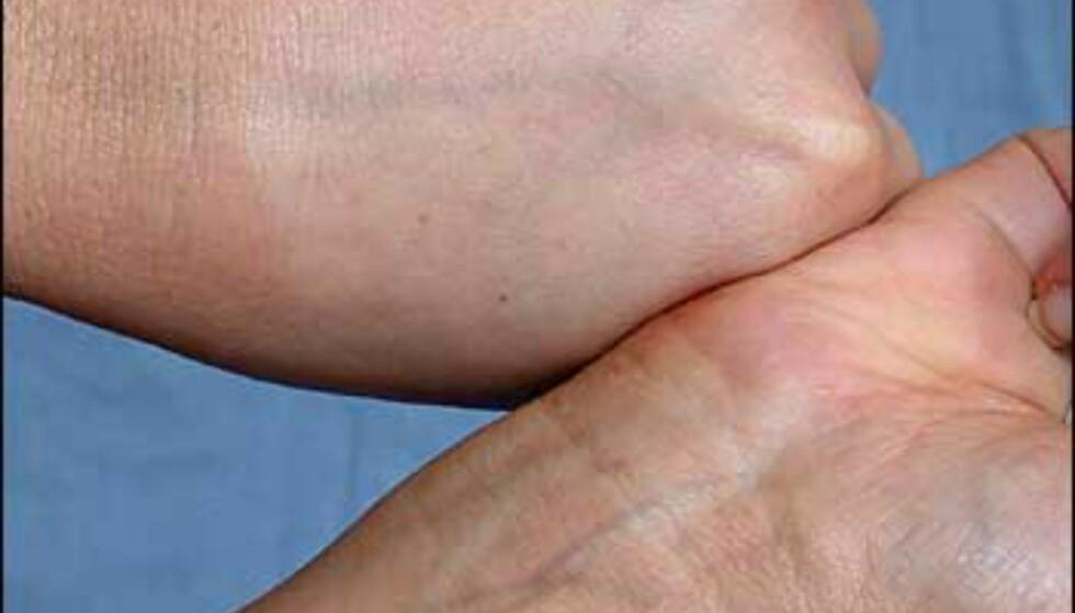 """Pass også på når du bruker selvbruning på hendene. Uforsiktig påføring og for mye krem på undersiden av armene kan gi """"skittent"""" resultat, og slurvete vask etter påføring kan gi striper og fargeskille."""