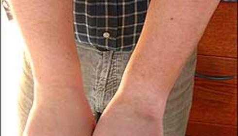 Coppertone på testerens venstre hånd, Piz Buin på den høyre.