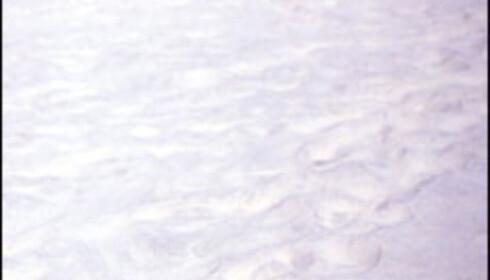 La restskatt være restskatt og legg bekymringene på hylla for en liten stund. Nå har så godt som alle råd til sol på kroppen og sand mellom tærene.  Foto: Kristin Sørdal