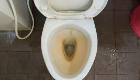 GULE RINGER: Hell to kopper hvit eddik i toalettskålen og la det virke over natten. Du fjerner både vond lukt og de gule ringene. Foto: ilove/Shutterstock/NTB scanpix