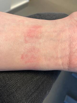 RØDT UTSLETT: Slik så det ut på armen etter kort tids bruk av Fitbit Versa. Hvis jeg skal fortsette å bruke klokka, må jeg kjøpe en annen type reim. Foto: Kirsti Østvang