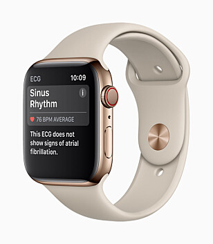 SPENNENDE NYHET: EKG-funksjonen til nye Apple Watch er kanskje den mest spennende nyheten, men vi vet ikke når nordmenn vil kunne bruke den. Foto: Apple